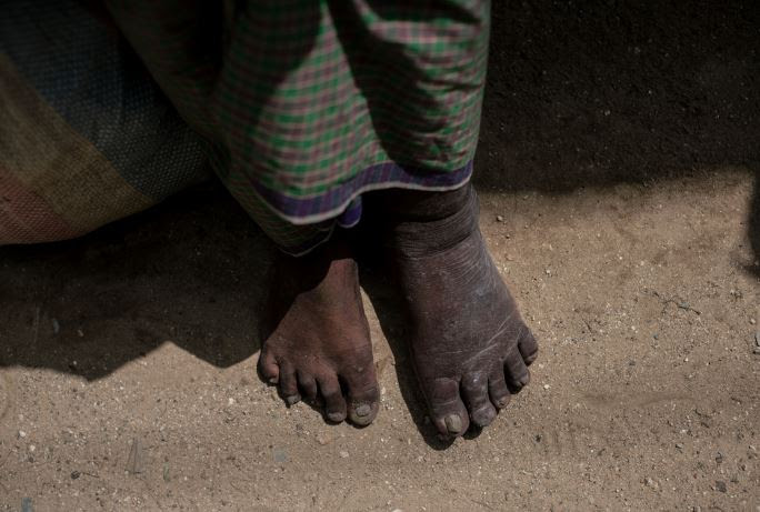 This was the time I began to understand the devastation and heartbreak created by lymphatic filariasis (LF)