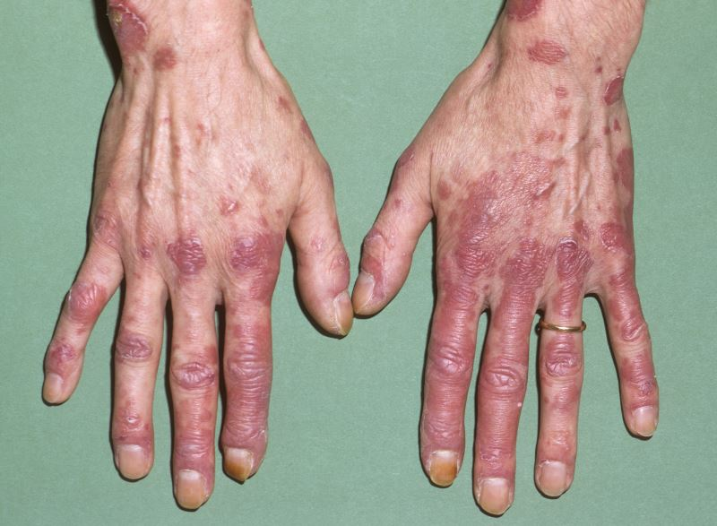 Lupus is an autoimmune disease that occurs when the body's defence system produces antibodies that attack your own tissues causing an inflammation as opposed to the immune system protecting the body from infections.