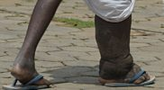 Civil Society Organisations partner to fight Neglected Tropical Diseases